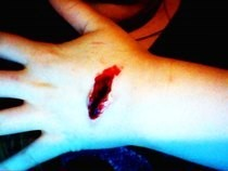 Deep Wound/Cut/Scratch